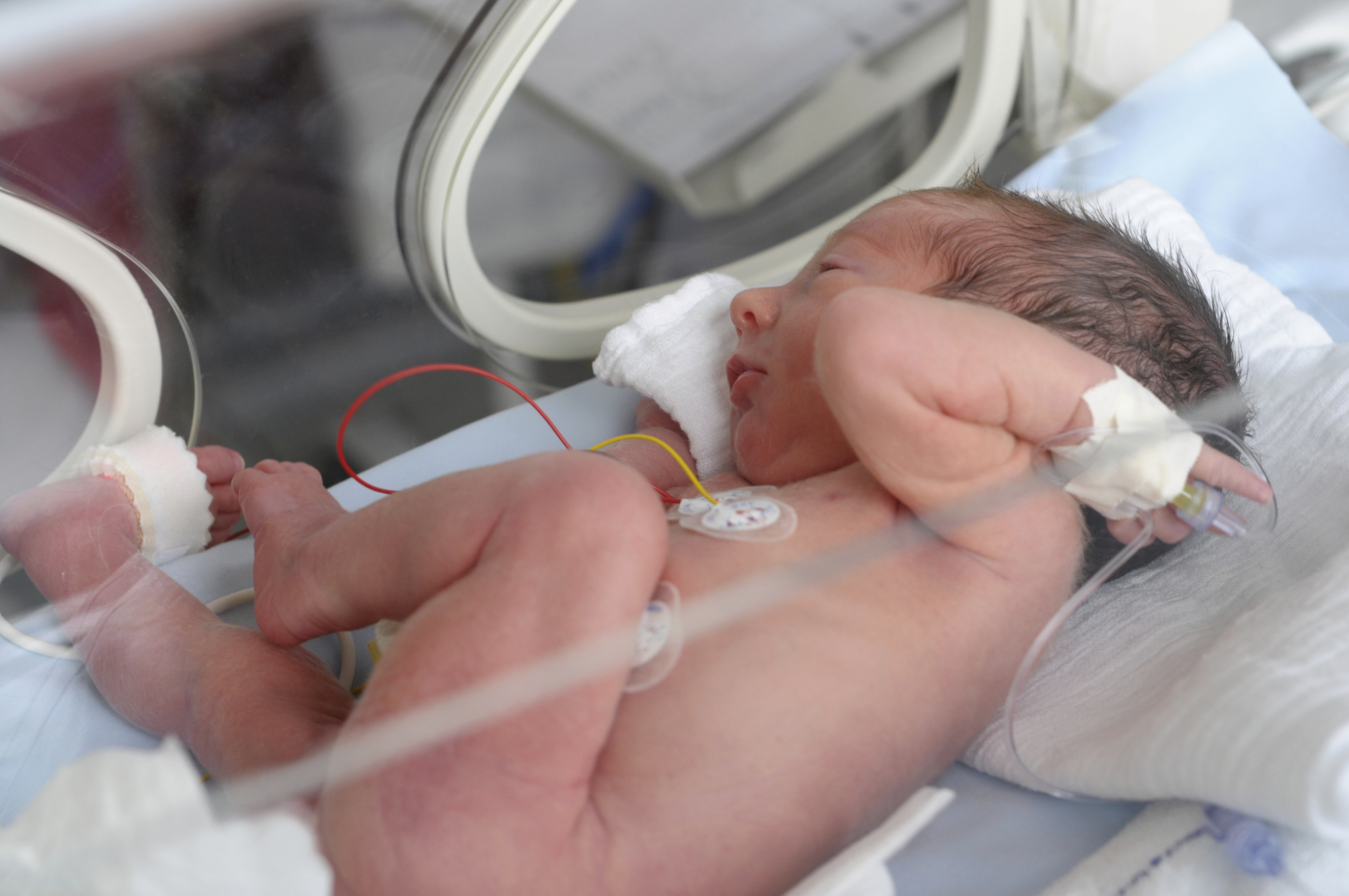 38 semaines : accouchement sans risque?